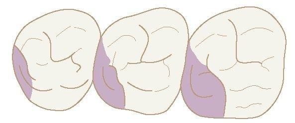 The Permanent Maxillary Molars Dental Anatomy Physiology And
