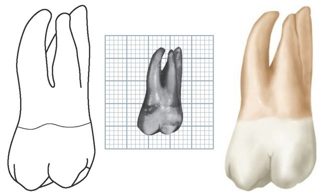 Maxillary left second molar, buccal aspect. (Grid = 1 sq mm.)