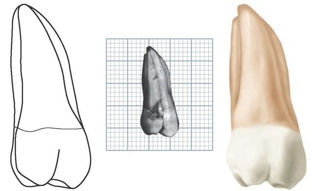 Maxillary left second molar, lingual aspect. (Grid = 1 sq mm.)