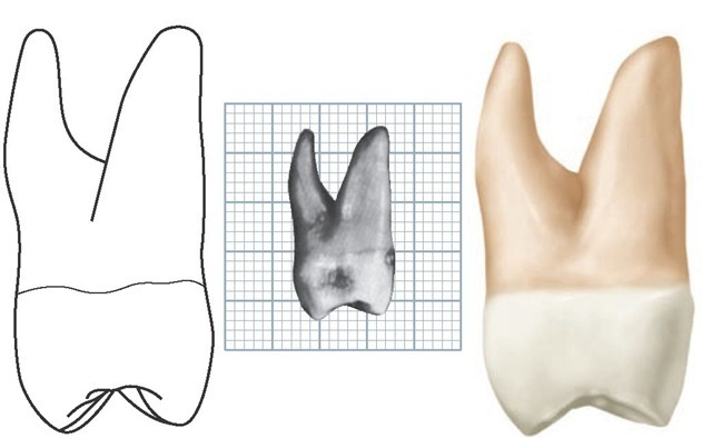 Maxillary left second molar, mesial aspect. (Grid = 1 sq mm.)