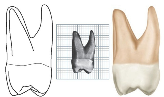 Maxillary left second molar, distal aspect. (Grid = 1 sq mm.)