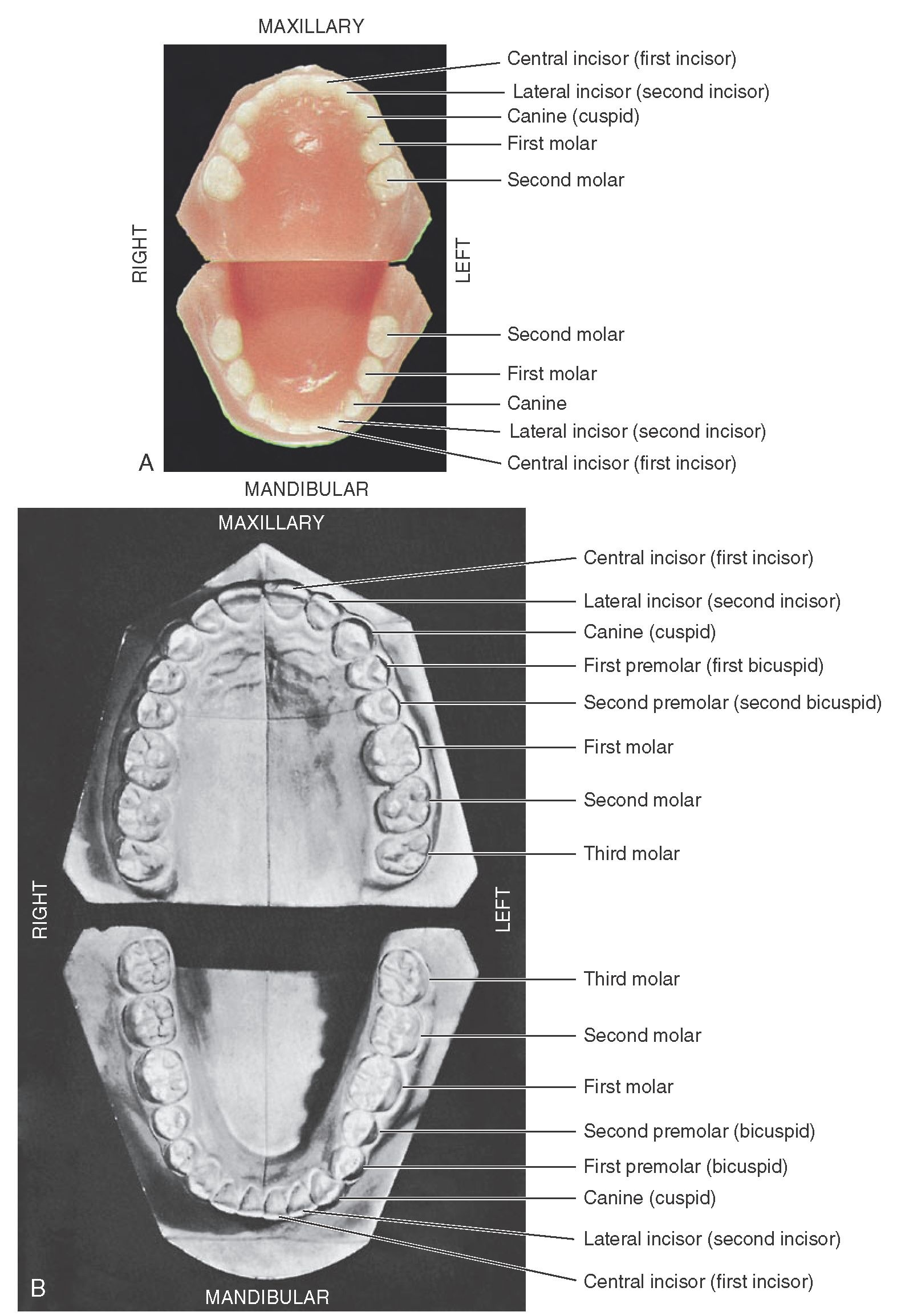 A, Casts of deciduous, or primary, dentition. B, Casts of permanent dentition.
