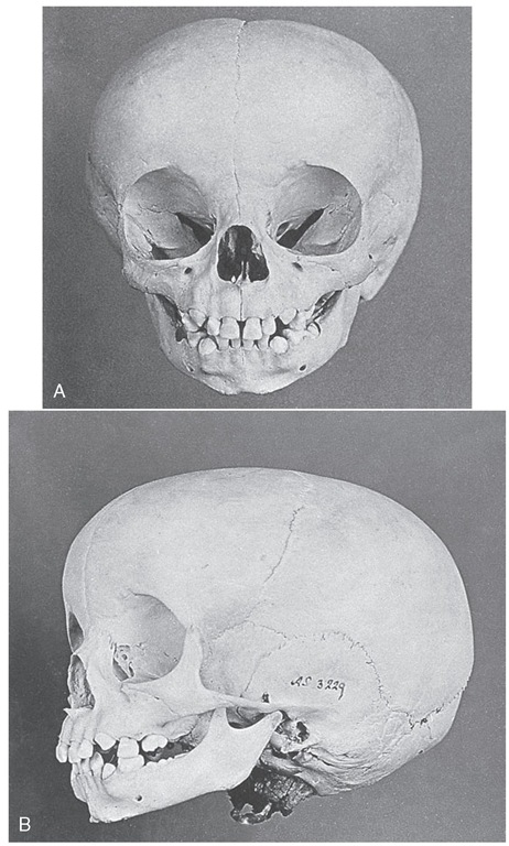 Skull of a child about 20 months of age. A, View showing all incisors present and erupting canines. B, Lateral view. First primary molars are in occlusion; mandibular second molars are just emerging opposite the already erupted maxillary molar.