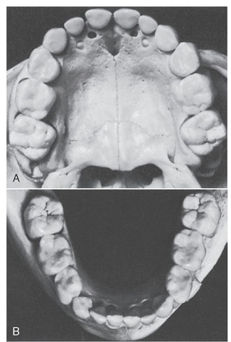 Primary dentition with first permanent molars present. Maxillary arch. B, Mandibular arch.