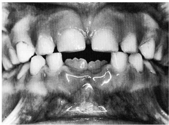 Eruption of the permanent central incisors. Note the incisal edges demonstrating mamelons and the width of the emerging incisors.