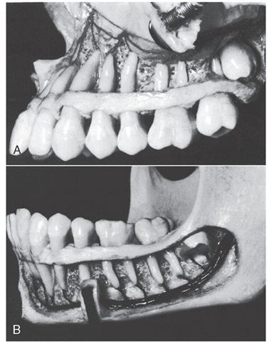 Development of the maxillary and mandibular third molars.
