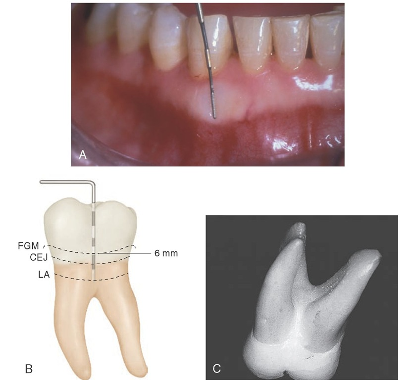 A, Periodontal probe divided into 3-mm segments. B, Probe at the level of attachment (LA). Probe indicates a pathologically deepened crevice of 6 mm and a loss of attachment of 3+ mm. C, Enamel projection into the bifurcation of a mandibular molar. CEJ, Cementoenamel junction; FGM, free gingival margin.