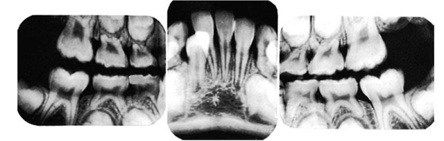 Shown in this radiograph are 6-year molars in position, roots of primary teeth being resorbed, and formation of succedaneous teeth.