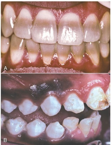 A, Tetracycline staining. B, Enamel fluorosis.
