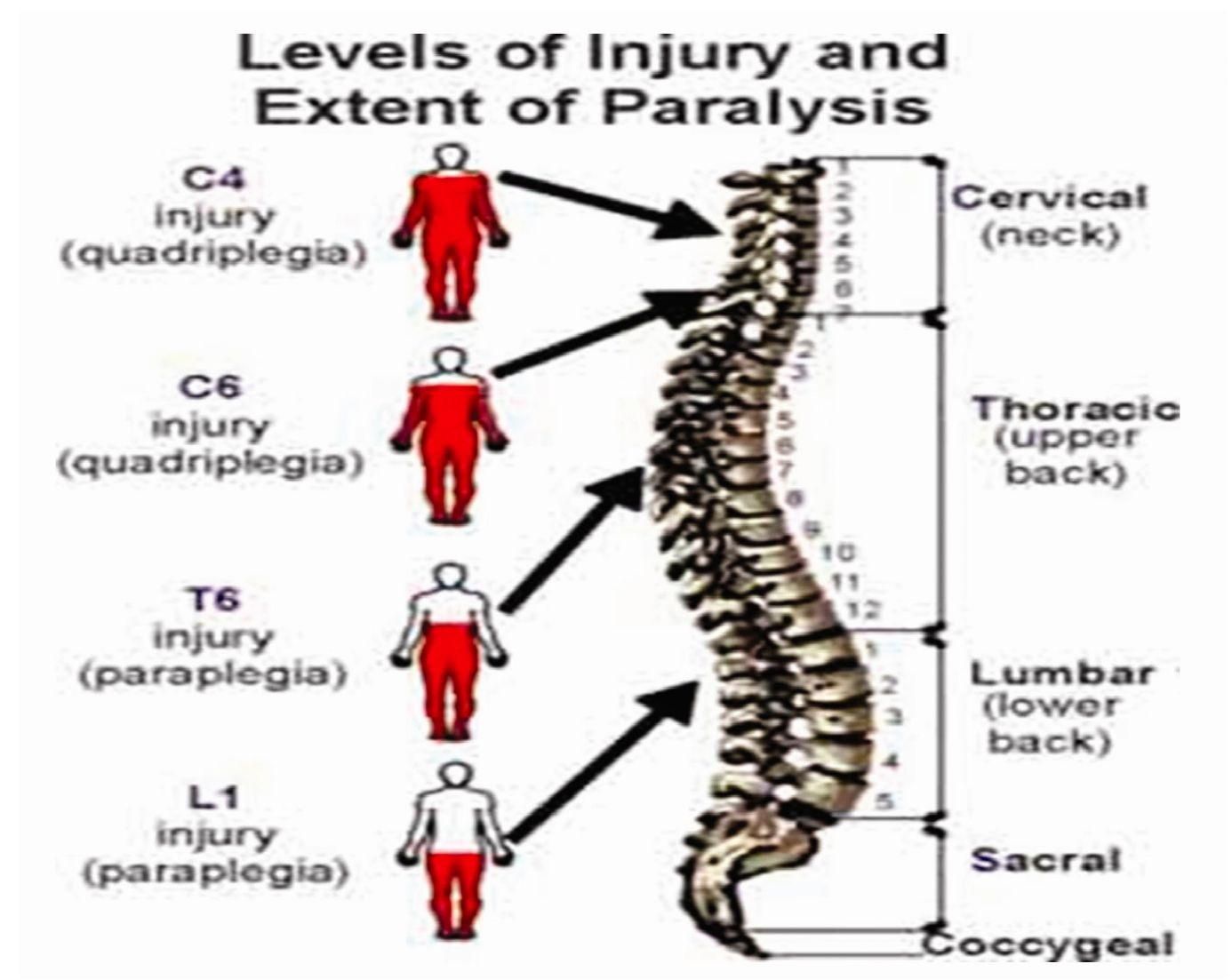 Bradycardia secondary to cervical spinal cord injury uncommon spinal cord and level of injury sciox Images