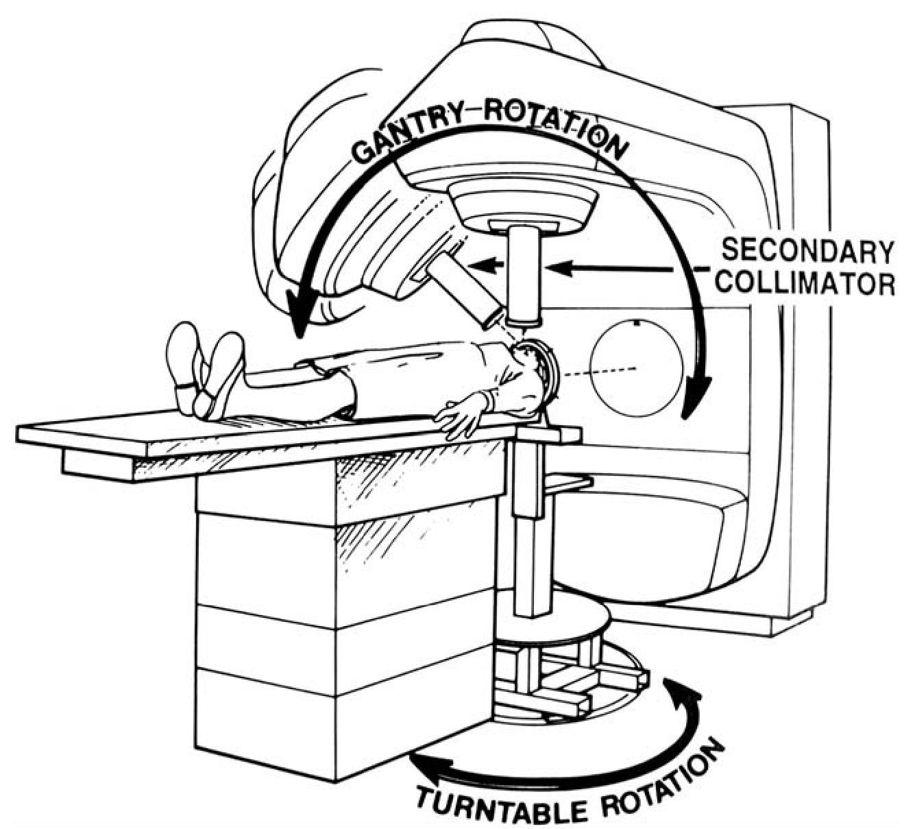 stereotactic radiosurgery  indications and general