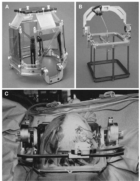 tmp1A-5Cosman-Roberts-Wells (CRW) stereotactic system. A, MRI-compatible headring with attached Universal Compact Localizing Frame (UCLF). B, Rectilinear phantom pointer (RLPP) with CRW stereotactic frame calibrated to phantom target. The RLPP is also used for isocenter verification in the X-knife stereotactic radiosurgery system. C, Intraoperative view of CRW-based stereotactic biopsy for lesion in the right frontal lobe.