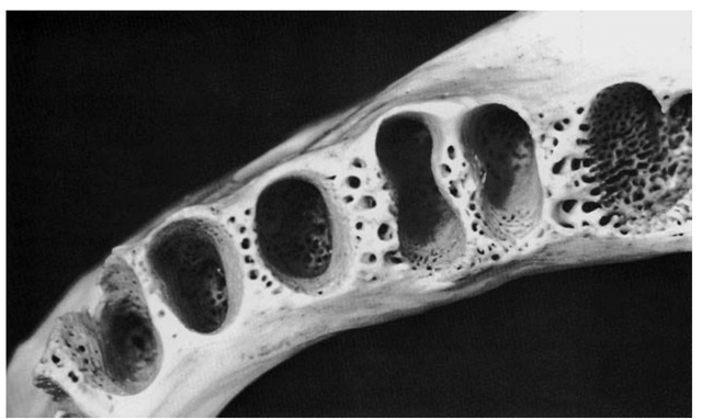 This view of the mandibular alveoli includes the canine, the first and second premolars, and a clear view of the mandibular first molar alveoli. Note the excellent design for the anchorage of first molar roots. Apparently, the blood supply for the interseptal bone lessens as anterior teeth are approached. The apical portion of the canine alveolus displays the single opening in the bone for the blood and nerve supply to the tooth pulp.