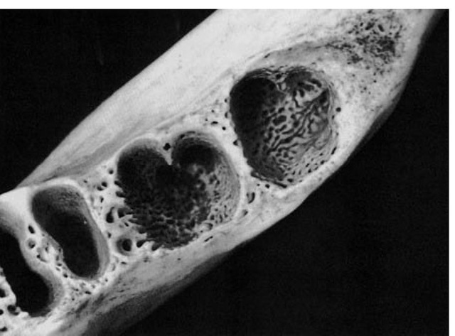 Alveoli of the first, second, and third molars. Features for special attention include the thin and perforated surface of the retromolar triangular space distal to the third molar alveolus and the cancellous formation in the alveoli proper and also in the interdental septa, which would allow a rich blood supply.
