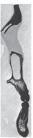 First premolar regions.