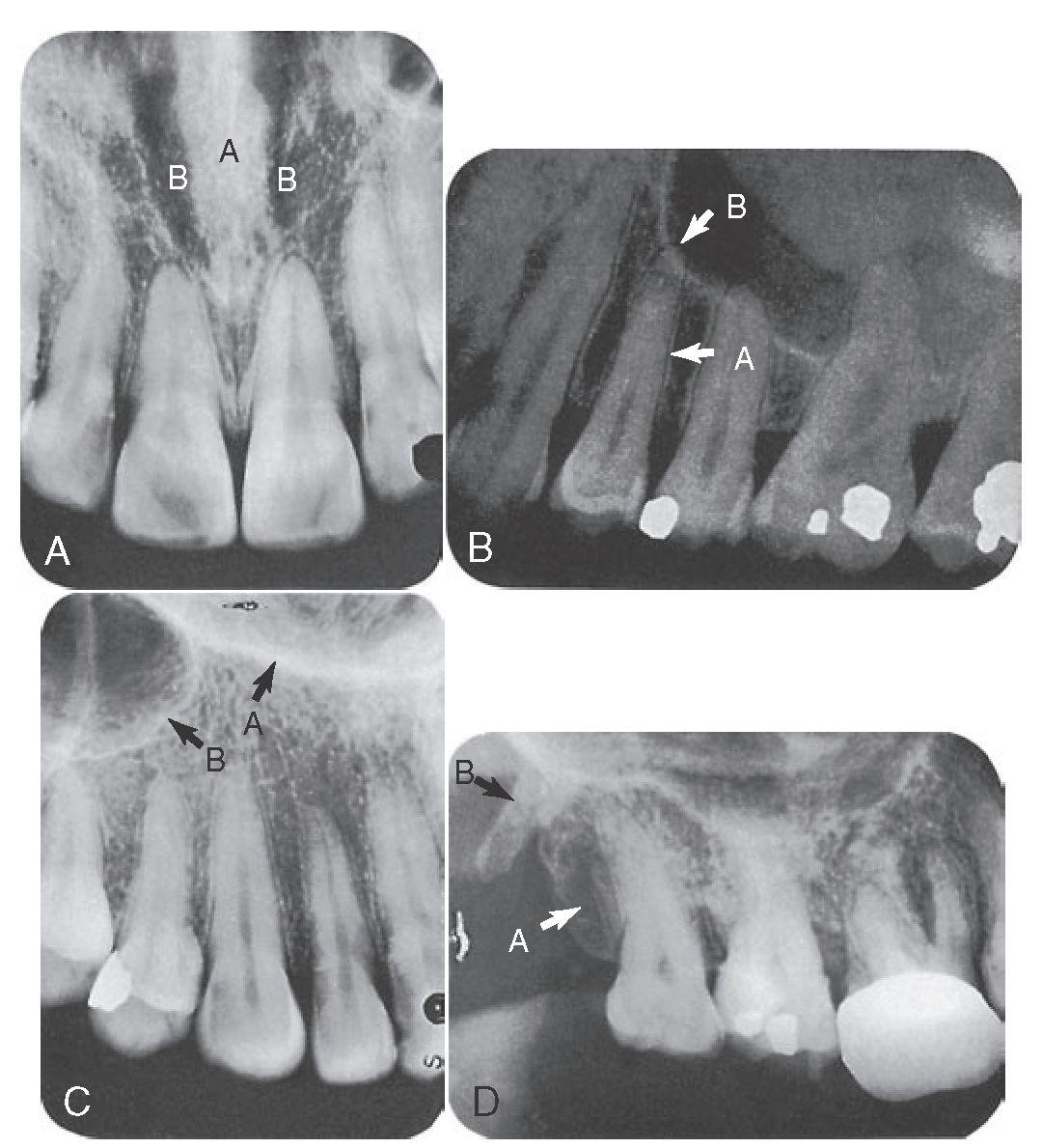 Nasal Septum Radiograph The Nasal Septum a And