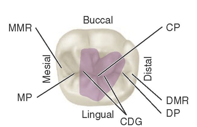 Mandibular right first molar, occlusal aspect. Shaded area is the central fossa. CP, Central pit; DMR, distal marginal ridge; DP, distal pit; CDG, central developmental groove; MP, mesial pit; MMR, mesial marginal ridge.