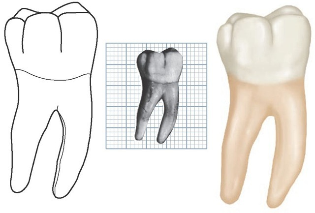 Mandibular right first molar, buccal aspect. (Grid = 1 sq mm.)