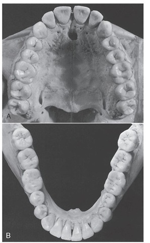 The curvature of the maxillary (A) and mandibular (B) arches as seen from the occlusal (horizontal) plane tends to be maintained even though the tipped third molars alter the curvature (curve of Spee) of the arches as seen from the sagittal plane.