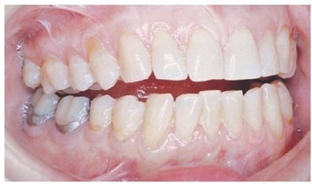 Occlusion (Dental Anatomy, Physiology and Occlusion) Part 3