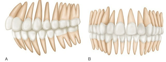 A, Anterior and lateral view of average arrangement of the teeth showing mean inclination. Longitudinal axes of roots have been extended beyond the crowns and appear in orthographic projection. B, Orthographic projection of mandibular teeth seen from an anterior and lateral perspective. Root axes are extended beyond the crowns. The degree of obliquity of roots represents an average of the skulls examined.