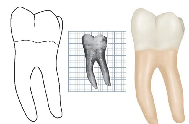 Mandibular right first molar, lingual aspect. (Grid = 1 sq mm.)