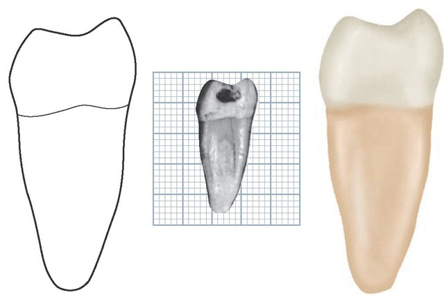 Mandibular right first molar, mesial aspect. (Grid = 1 sq mm.)