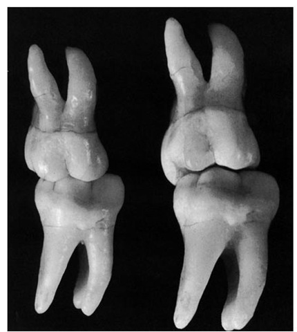 First molars positioned in simulated contact relations in the intercuspal position. In the left illustration the teeth are viewed from a right angle, which suggests that the mesiobuccal cusp of the maxillary molar fits snugly into the mesiobuccal groove of the mandibular molar. However, in the right illustration the view of the tipped molars shows that the triangular ridge of the mesiobuccal cusp does not fit tightly into the mesiobuccal groove and that there are many escapement spaces present.