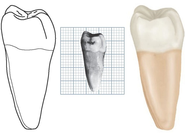 Mandibular right first molar, distal aspect. (Grid = 1 sq mm.)