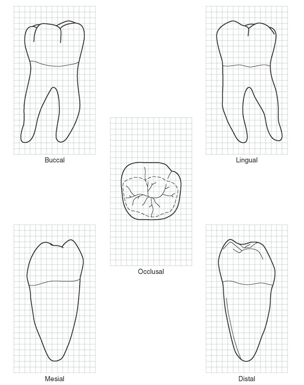 Mandibular right first molar. Graph outlines of five aspects are shown. (Grid = 1 sq mm.)