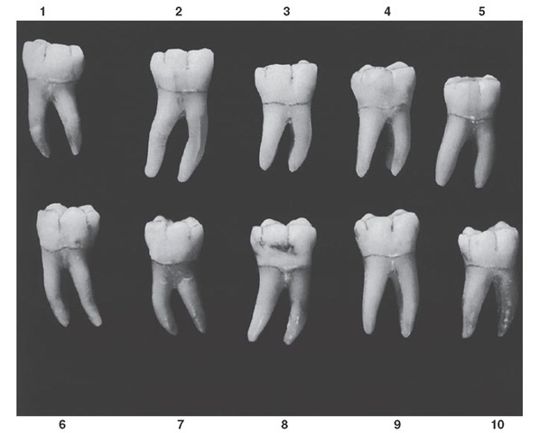 Mandibular first molar, occlusal aspect. Ten typical specimens are shown.