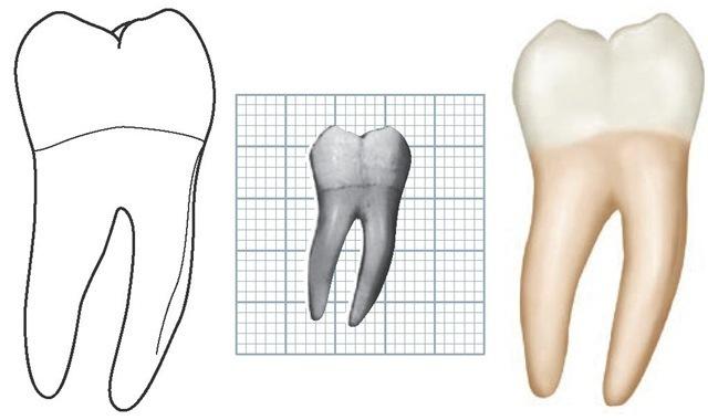The Permanent Mandibular Molars (Dental Anatomy, Physiology and ...