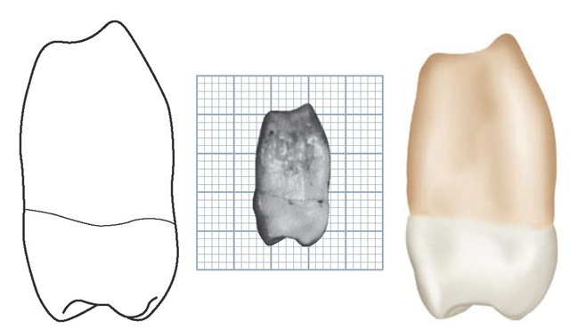 Maxillary right third molar, mesial aspect. (Grid = 1 sq mm.)