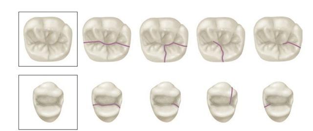 Old Fashioned Mandibular Molar Anatomy Illustration - Anatomy And ...