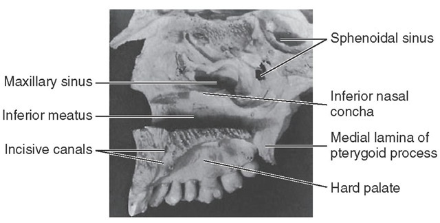 Medial view of right maxilla. This specimen has not been disarticulated completely and has the maxillary teeth in situ.