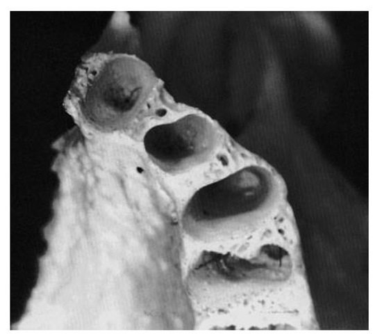 Alveoli of the central incisor, lateral incisor, and canine.