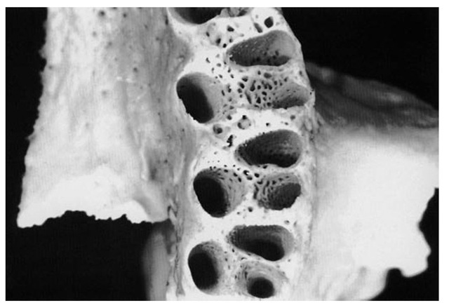 Alveoli of the molar area. Note the thinness of the buccal plates over the first molar roots compared with those of the second and third maxillary molars. The third molar alveoli are rarely separated as distinctly as in this specimen. Figures 14-9, 14-10, and 14-11 demonstrate a number of significant points concerning the maxillary alveoli. In Figure 14-9 the facial cortical plate of bone is thin over the anterior teeth and is considerably thicker over the posterior teeth, especially the molars. Cancellous bone seems to exist buccal to some of the posterior roots. In Figure 14-10 interradicular septa are thick but with numerous nutrient canals. In Figure 14-11 cancellous bone, furnishing numerous opportunities for blood supply, is evident in the apical portions of the alveoli. The anterior alveoli are lined laterally with a layer of smooth cortical bone. This lining is less prominent in the posterior alveoli.