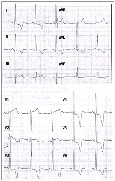 ECG is abnormal., 80-90% of cases. Abnormal Q-waves in inferior leads ...