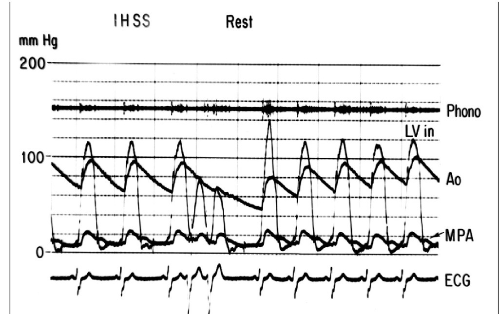 Simultaneous hemodynamic recordings of the left ventricular inflow (LV in), aorta (Ao) and main pulmonary artery (MPA). An electrocardiogram (ECG) and a phonocardiogram (phono) were also recorded. There is a small basal gradient between the left ventricular inflow and the aorta which increases in a post-extrasystolic beat together with the intensity of the systolic murmur shown in the phonocardiogram, as a consequence of the stronger contraction following the post-extrasystolic pause. (IHSS: idiopathic hypertrophic subaortic stenosis).