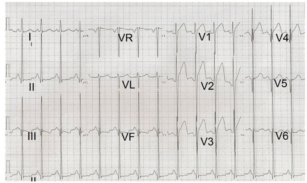 Electrocardiogram of a 16 year-old male patient showing increased R wave voltages and secondary ST-T changes indicating severe left ventricular hypertrophy.