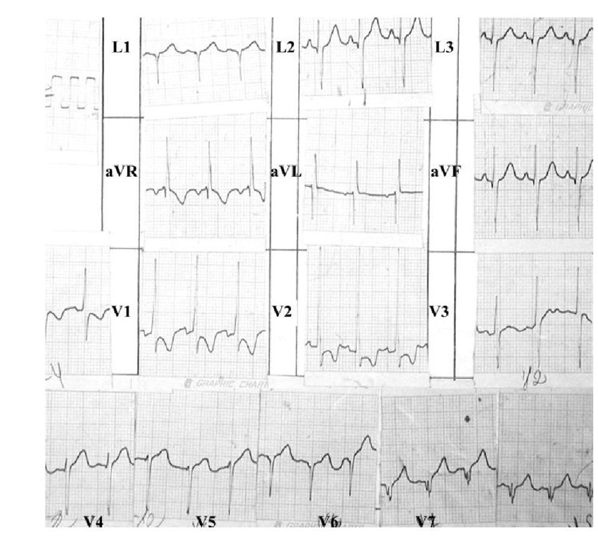Electrocardiogram belonging to a 4 year-old boy with a QRS axis of -120° with Q waves in leads II, III and aVF. There are signs of combined ventricular hypertrophy, loss of R wave voltage from V4 to V8 with appearance of QS complexes in V6 and pathological Q waves in V7 and V8.