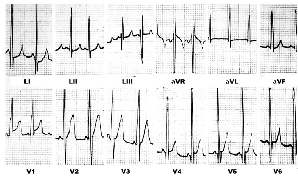 Typical electrocardiogram of an infant with Pompe's disease. There is short atrioventricular conduction and biventricular hypertrophy with large voltages and no repolarization abnormalities.