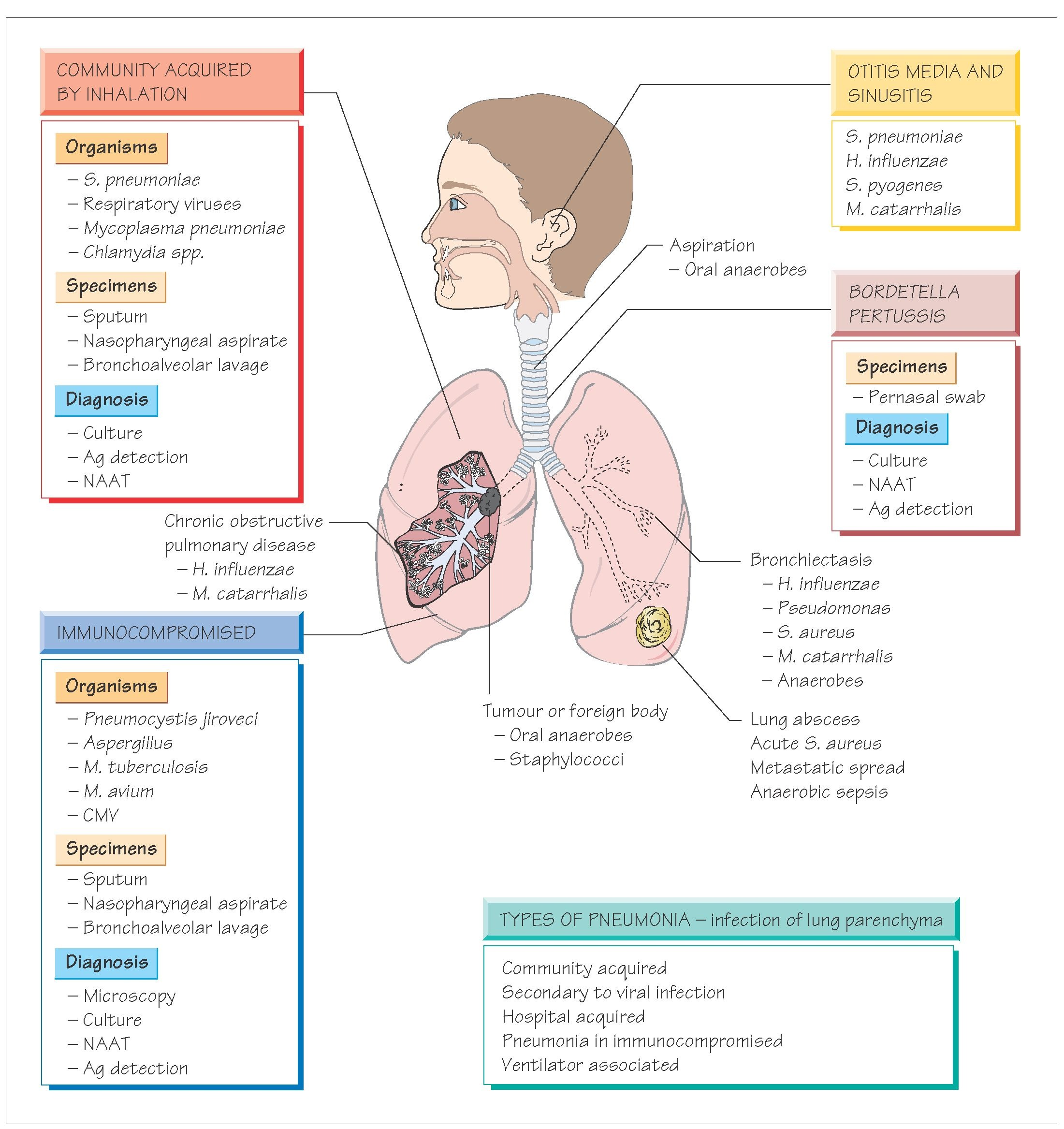 Respiratory Tract Infections Systemic Infection