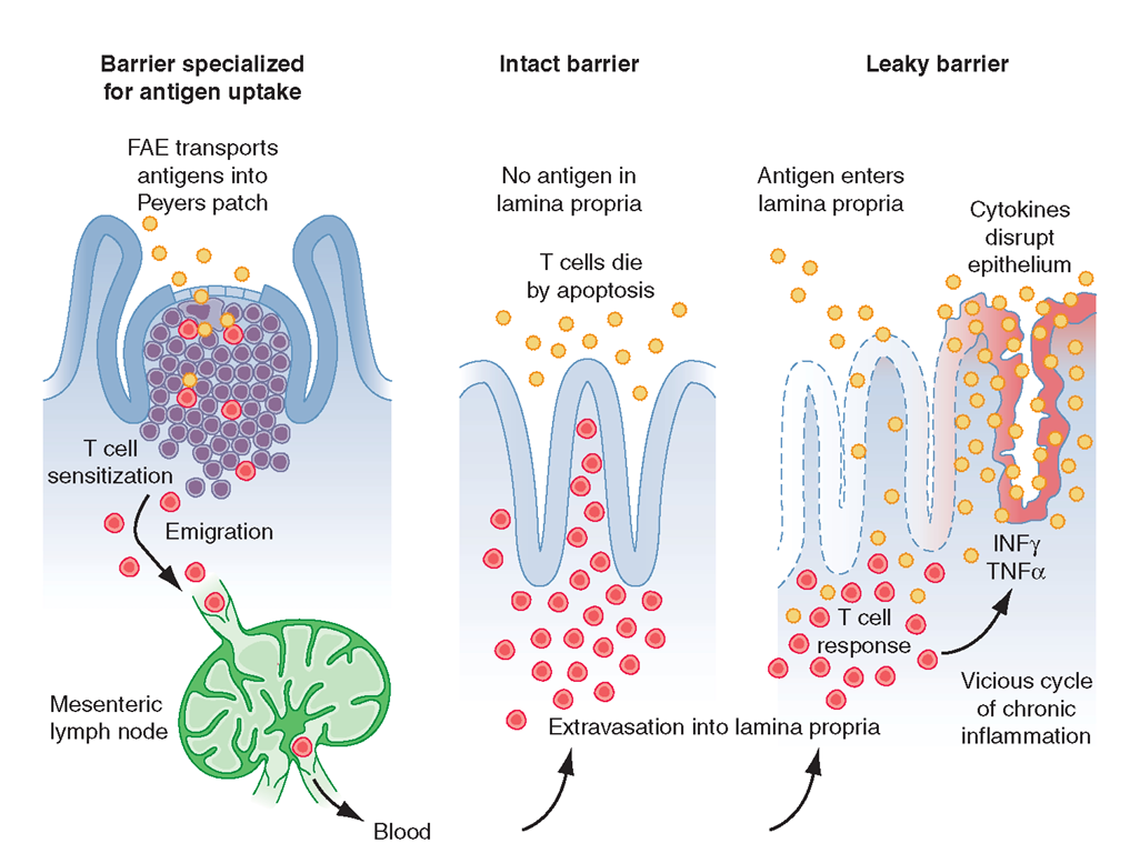 Increased epithelial permeability may be important in the development of chronic gut T cell-mediated inflammation. CD4 T cells activated by gut antigens in Peyer's patches migrate to the LP In healthy individuals, these cells die by apoptosis. Increased epithelial permeability may allow sufficient antigen to enter the LP to trigger T cell activation, breaking tolerance mediated by immunosuppressive cytokines and perhaps T regulatory cells. Pro-inflammatory cytokines then further increase epithelial permeability, setting up a vicious cycle of chronic inflammation.