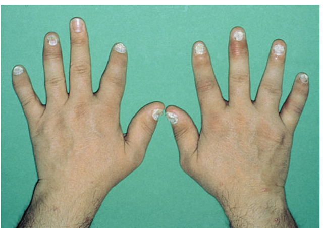 The Spondyloarthritides (Disorders of Immune,Mediated Injury