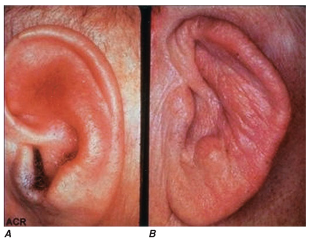 A. The pinna is erythematous, swollen, and tender. Not shown is the ear lobule that is spared as there is no underlying cartilage. B. The pinna is thickened and deformed. The destruction of the underlying cartilage results in a floppy ear.