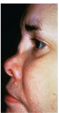Saddle nose results from destruction and collapse of the nasal cartilage.
