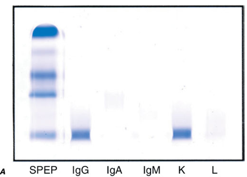 Laboratory Features Of AL Amyloidosis. A. Serum Immunofix Ation  Electrophoresis Reveals An IgGK