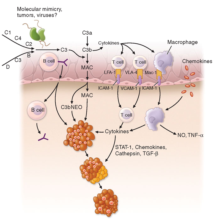 Immunopathogenesis of dermatomyositis. Activation of complement, possibly by autoantibodies (Y), against endothelial cells and formation of C3 via the classic or alternative pathway. Activated C3 leads to formation of C3b, C3bNEO, and membrane attack complexes (MAC), which are deposited in and around the endothelial cell wall of the endomysial capillaries. Deposition of MAC leads to destruction of capillaries, ischemia, or microinfarcts most prominent in the periphery of the fascicles, and perifascicular atrophy. B cells, CD4 T cells, and macrophages traffic from the circulation to the muscle. Endothelial expression of vascular cell adhesion molecule (VCAM) and intercellular adhesion molecule (ICAM) is induced by cytokines released by the mononuclear cells. Integrins, specifically very late activation antigen (VLA)-4 and leukocyte function-associated antigen (LFA)-1, bind VCAM and ICAM and promote T-cell and macrophage infiltration of muscle through the endothelial cell wall.