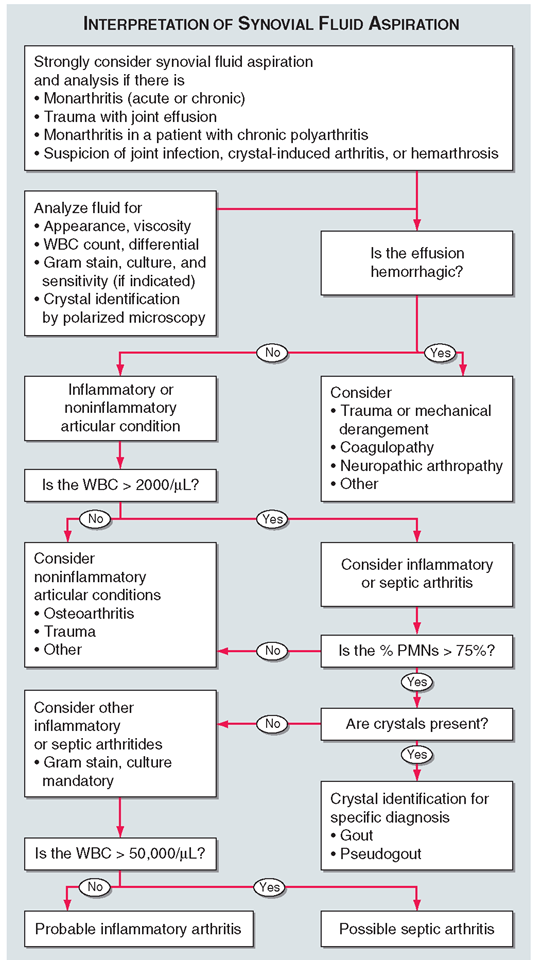 Algorithmic approach to the use and interpretation of synovial fluid aspiration and analysis.